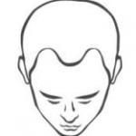 Haartransplantatie